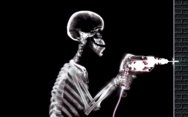romper muro del servicio radiologico