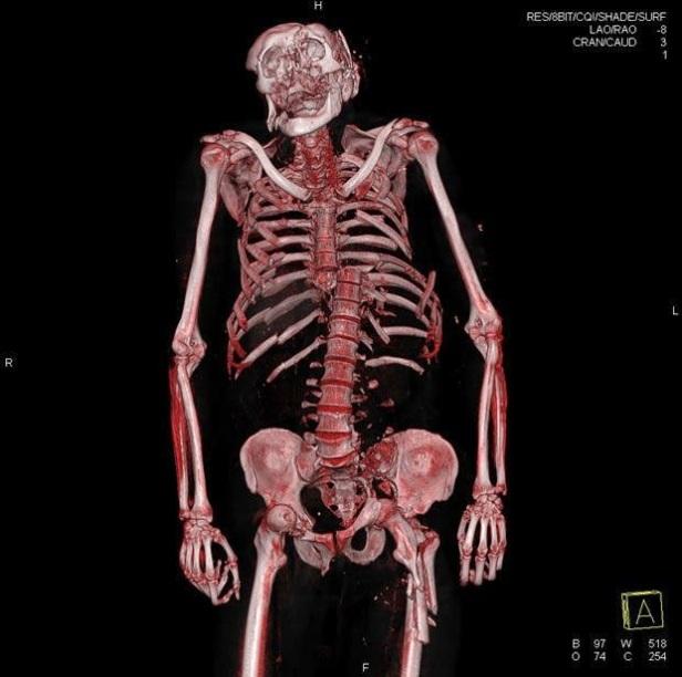 autopsya
