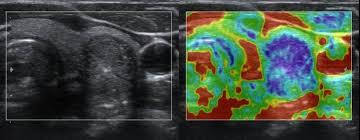 elastografia eco tiroides