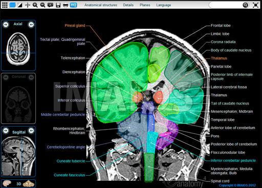 Navegador – Atlas del cerebro por imagen de resonancia magnética ...