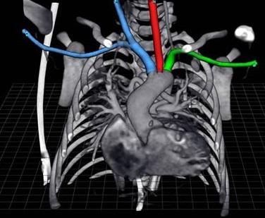 AR en Radiologia