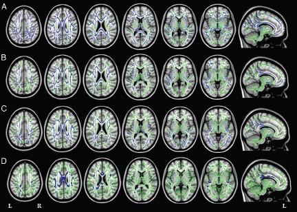 2015_05_26_16_11_16_316_DTI_MRI_Alzhiemers_Radiology