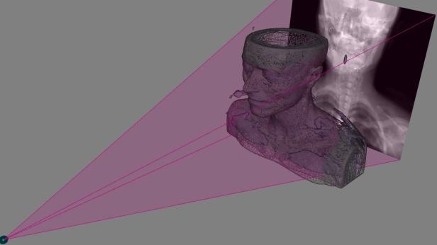 radiografias3d