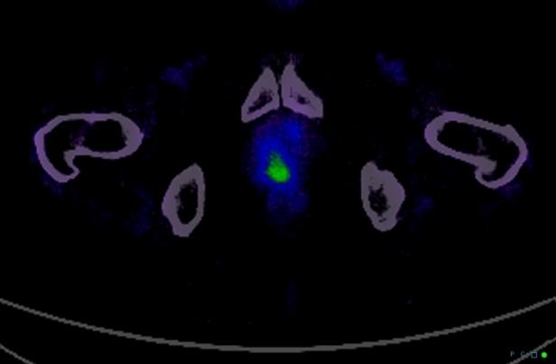 metastatic-prostate-cancer-to-pagetoid-bone-value-of-ga68psma-scan
